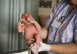 Forum : Avez-vous eu un accouchement par césarienne ?