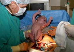 En savoir plus sur l'accouchement par césarienne